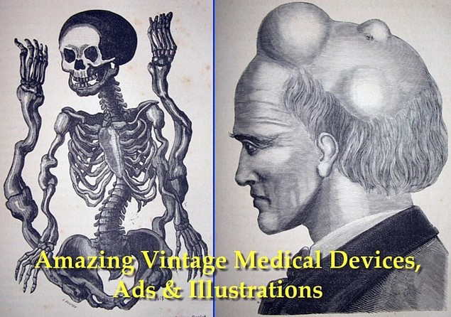 Product picture Amazing Vintage Medical Devices, Ads & Illustrations - PDF Ebook / Slideshow Album